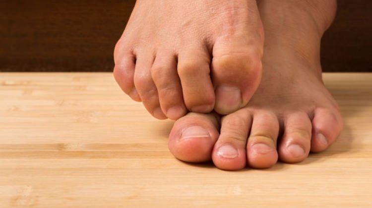 Ayak mantarı tedavisi